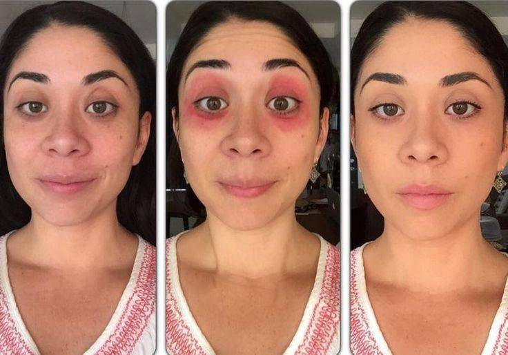 Как убрать синяк от удара под глазом: обзор лекарственных препаратов и народные средства