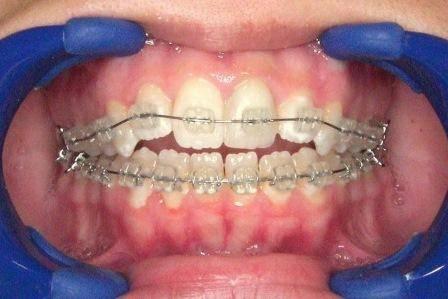 Центральная, передняя и боковая окклюзия в стоматологии: признаки каждого вида, отличия от артикуляции и прикуса