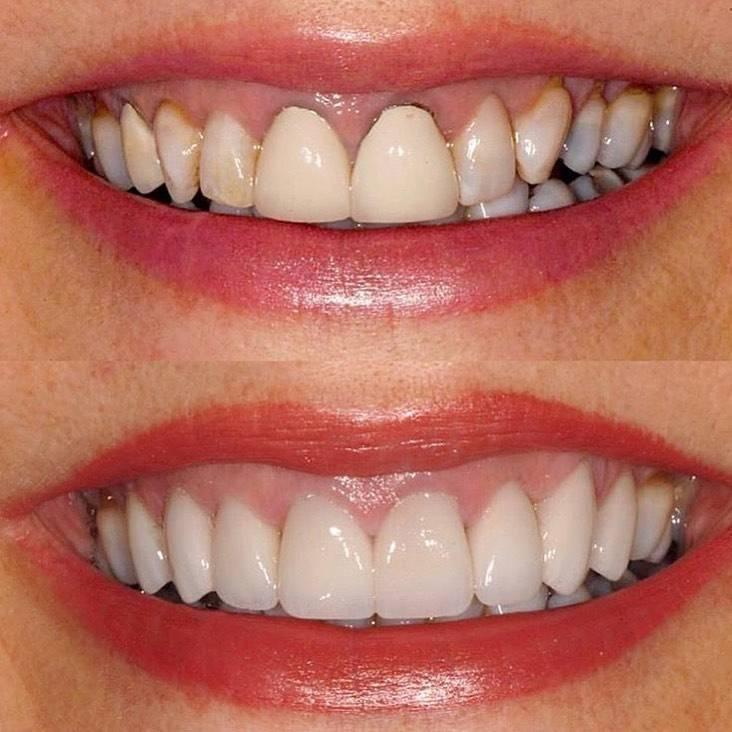 Виниры без обточки зубов: когда не нужно препарирование зубов и как проходит установка