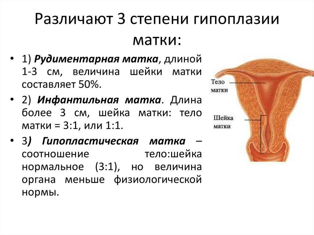 Гипоплазия эндометрия: симптомы, последствия, лечение