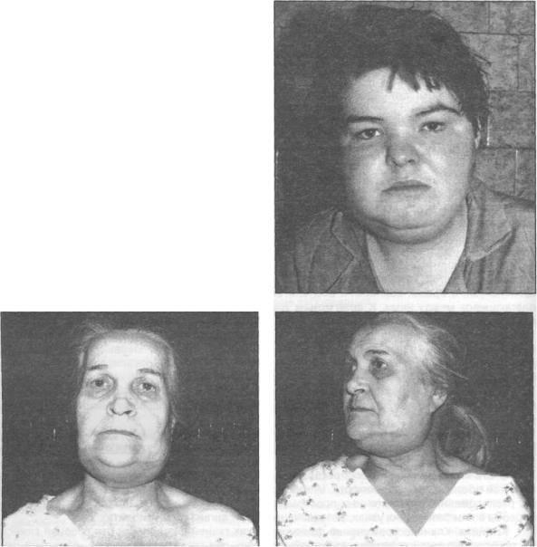 Методы вскрытия флегмон и абсцессов в челюстно-лицевой области и на шее