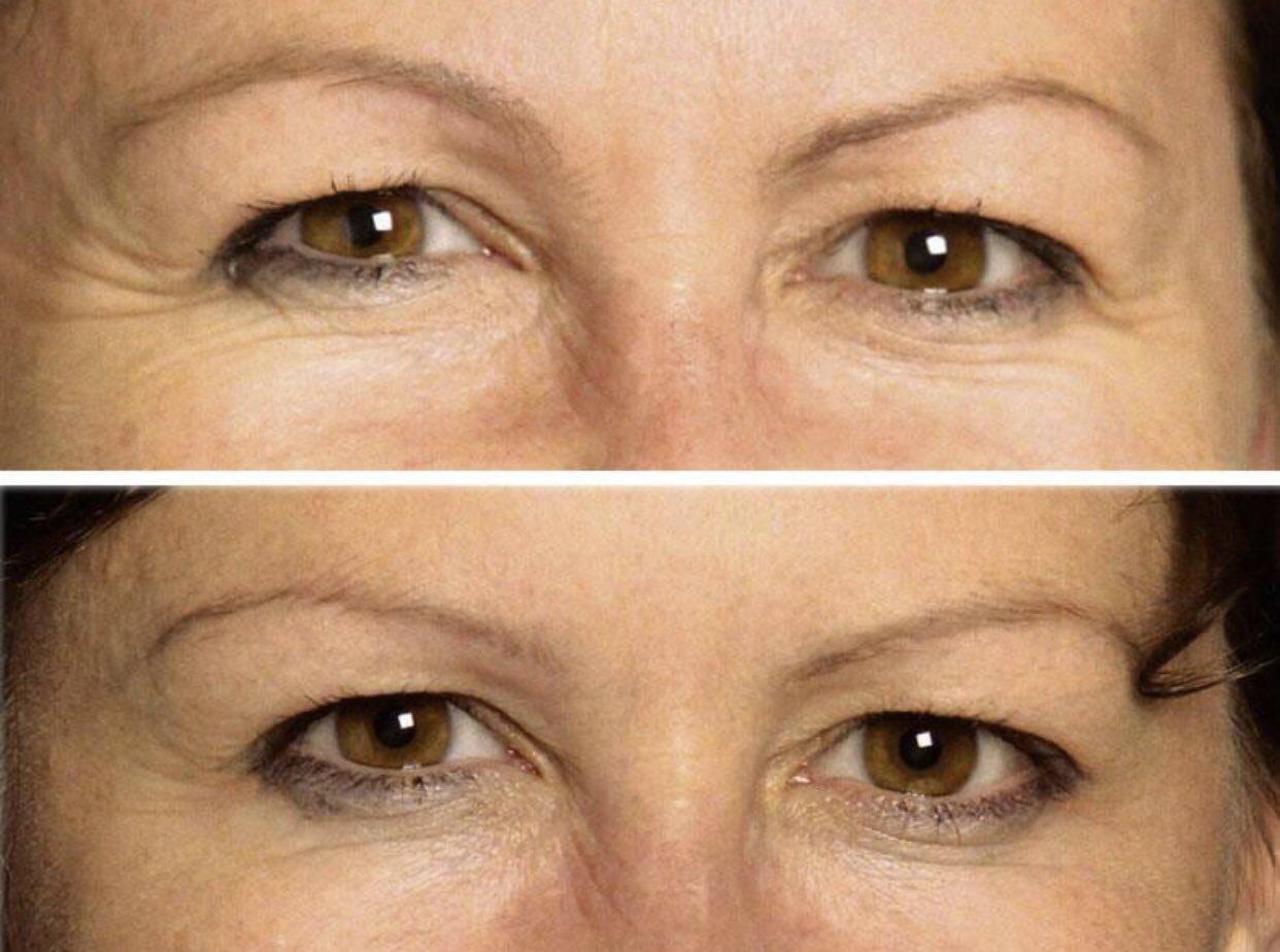 ботокс для глаз до и после фото цветной