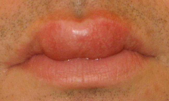 Почему опухают губы и как быстро снять отечность