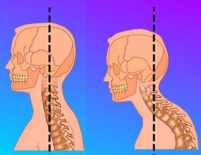 Как убрать холку на шее: упражнения и массаж для удаления «вдовьего горба»