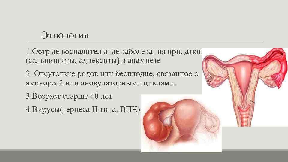 Двухсторонний сальпингоофорит