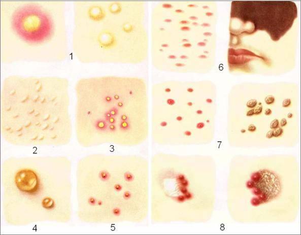 9 примеров, чем могут быть опасны уколы гиалуроновой кислоты – последствия сразу и через несколько лет