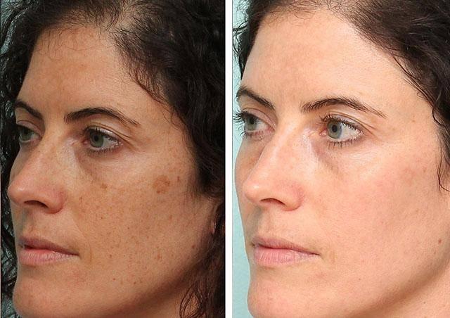 Какое средство помогает от пигментации на лице