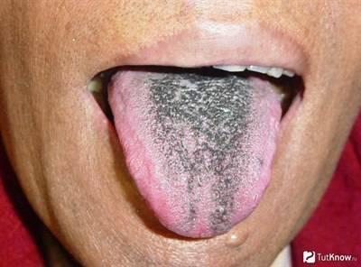 Десквамативный глоссит или «географический язык» — симптомы и диагностика заболевания