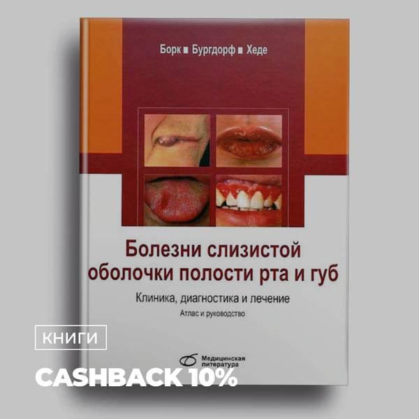 Заболевания слизистой оболочки полости рта. классификация, профилактика, лечение
