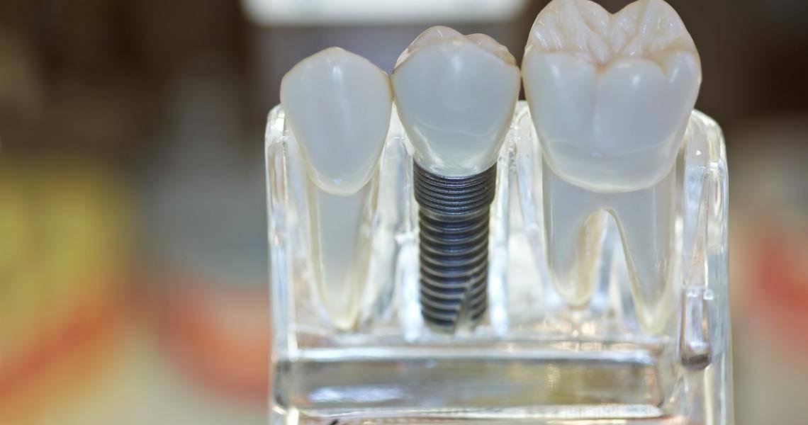 Как восстановить жевательные зубы