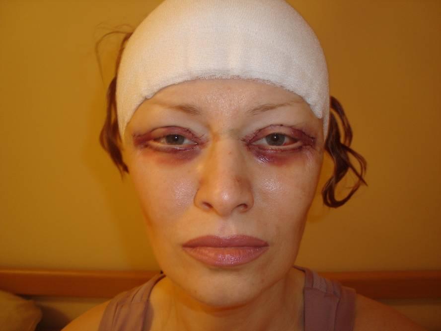 Как снять отек после операции на лице. послеоперационный отек руки противоотечные препараты для лица после операции