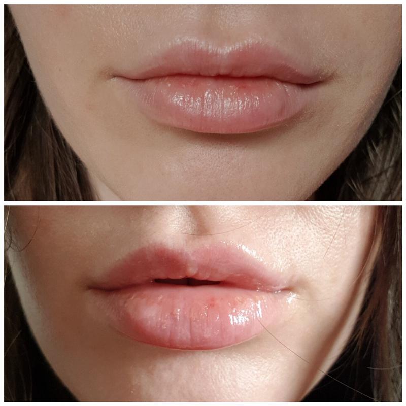 Всего одно упражнение, которое увеличит объем губ (без уколов)
