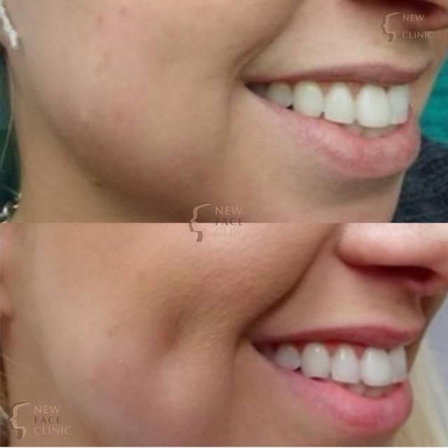 Как сделать ямочки на щеках быстро макияжем, упражнения, навсегда при помощи операции. что обозначают ямочки на щеках и как их можно сделать ямочки на щеках как их сделать