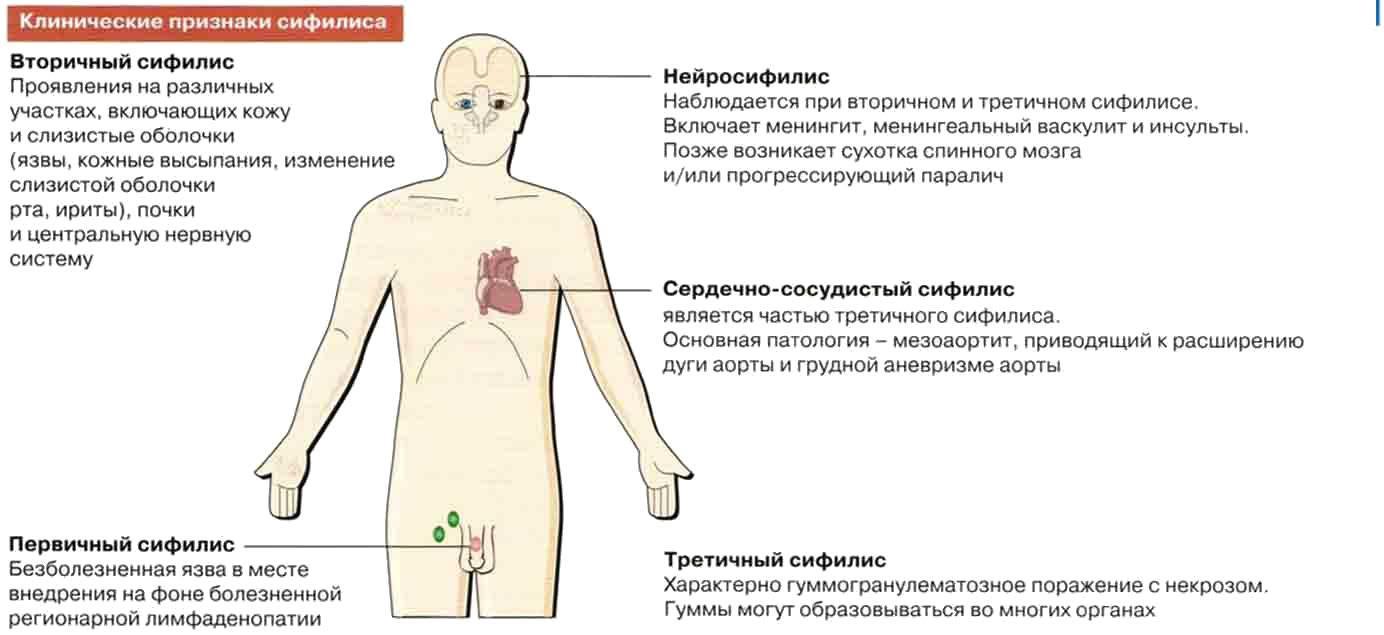 Сифилис – первые признаки, лечение, последствия