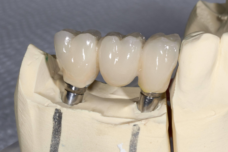 Импланты на синуслифт или мост