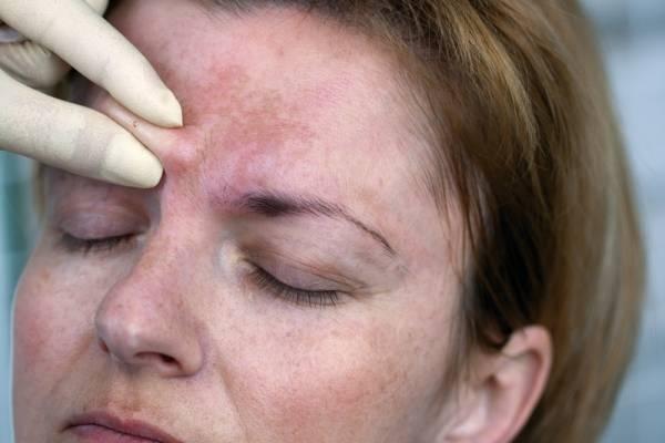 Аллергия на гиалуроновую кислоту