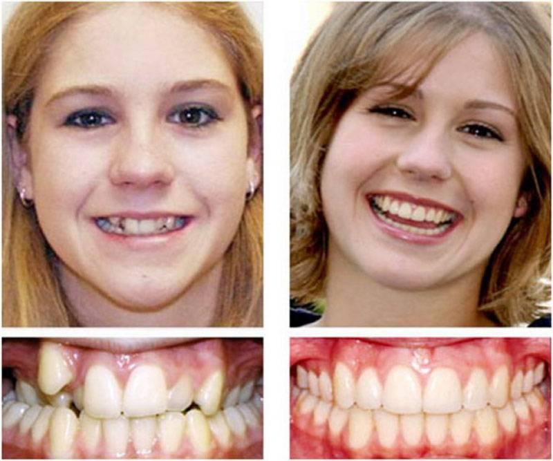 Удаление 4-х зубов для брекетов