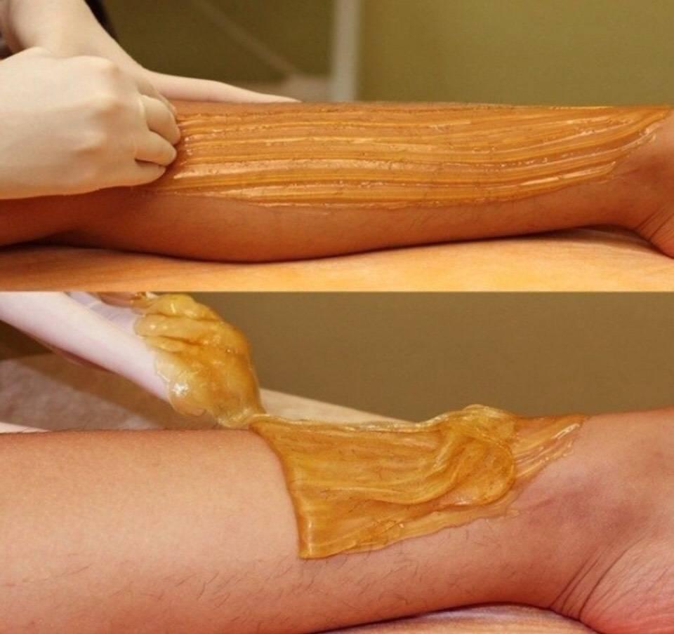 Как убрать волосы на ногах без бритвы в домашних условиях