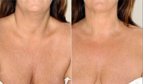 Осторожно! инъекционное увеличение груди