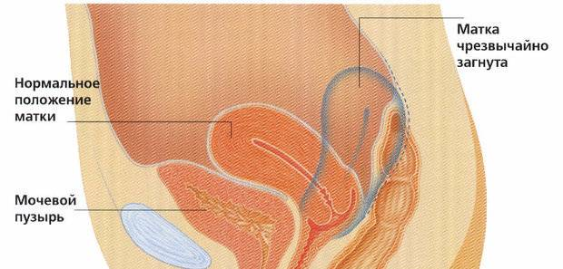 Причины и последствия загиба шейки матки