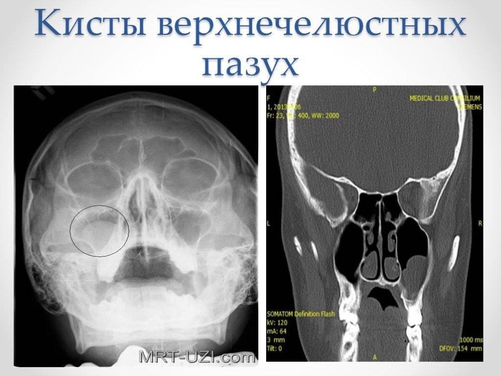 Современное лечение кисты гайморовой пазухи – терапия и показания для операции
