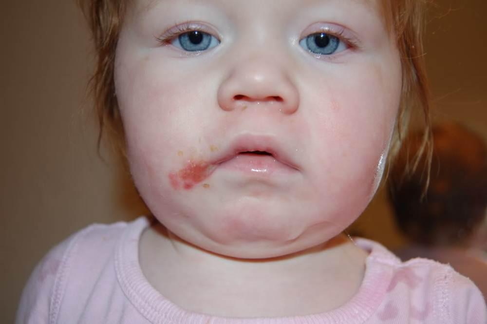 Раздражение вокруг рта (взрослые)