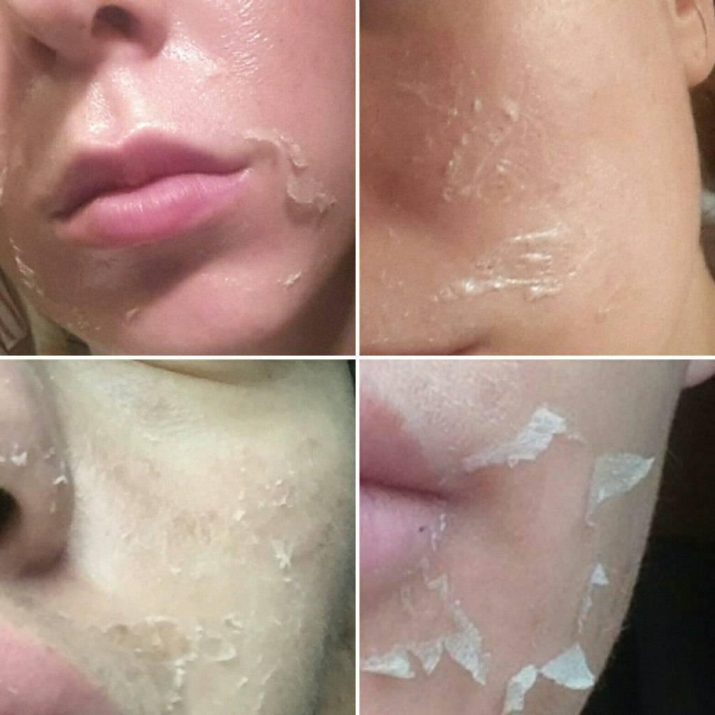 10 причин шелушения кожи лица — советы и рекомендации