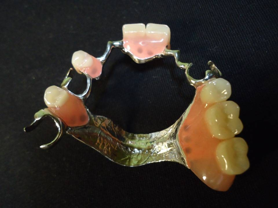 Какие зубные протезы лучше при частичной потере зубов?
