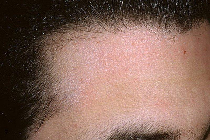 Перхоть на бровях — лечение, причины, симптомы