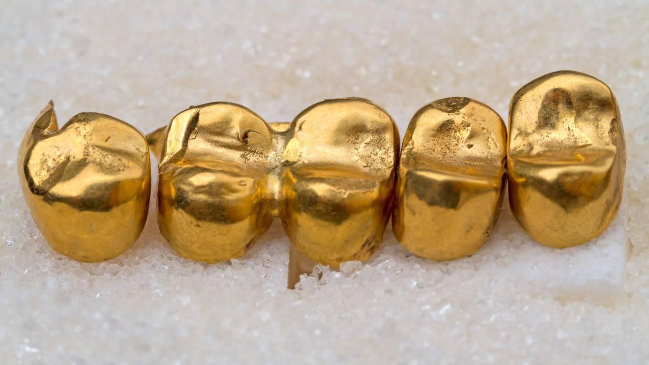 Штампованные металлические коронки, противопоказания, плюсы и минусы – зуб.ру