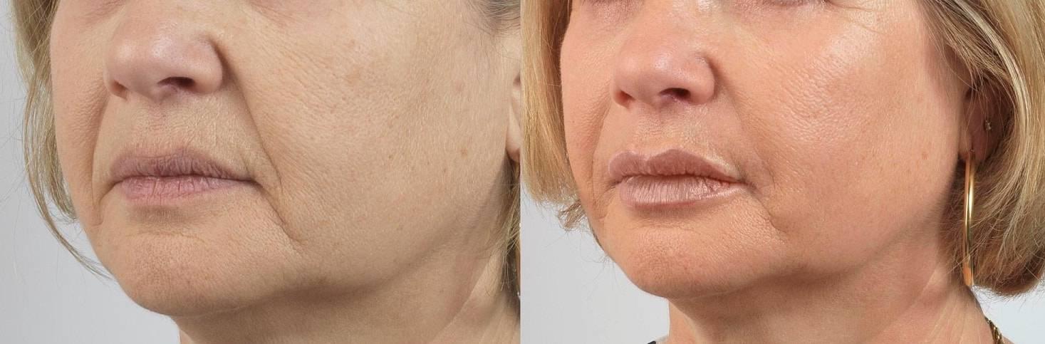 Липофилинг лица или гиалуроновая кислота что лучше. действие, возможные осложнения и отзывы хирургов о радиесс. о чем стоит помнить пациентам