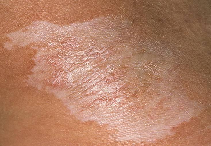 Розовый лишай у человека: симптомы, лечение, фото