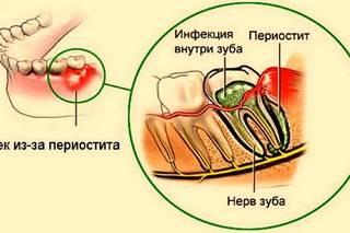 Чем опасно воспаление надкостницы зуба и методы его лечения