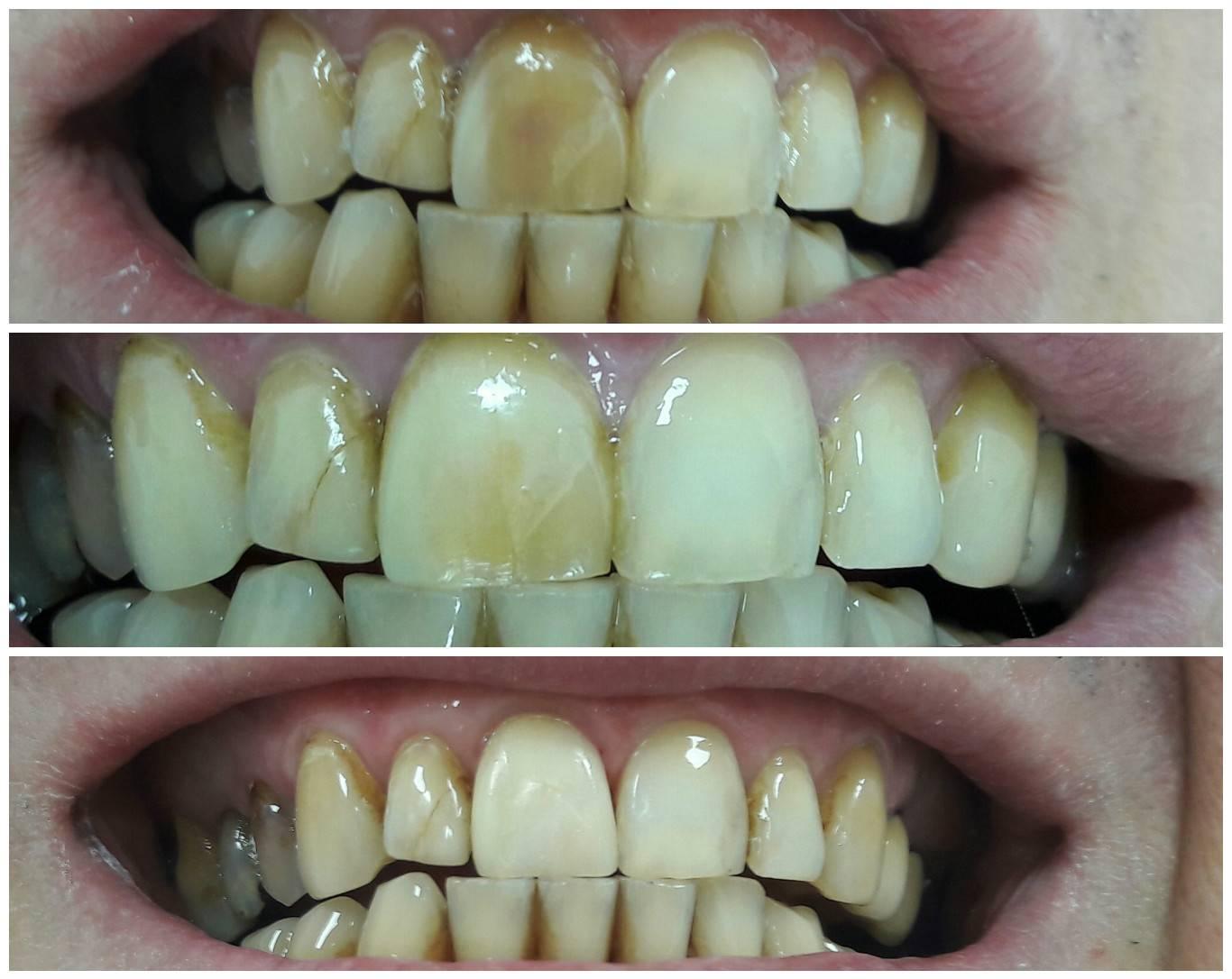 Наращивание зубов: цена, основные способы и их преимущества