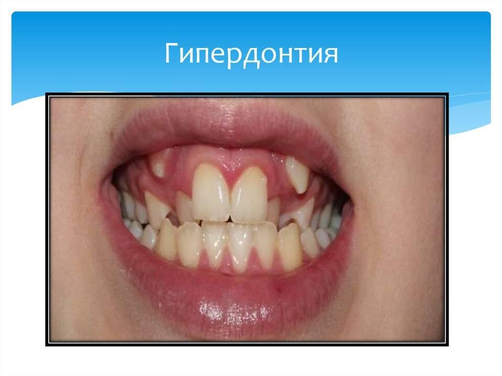 Полиодонтия или сверхкомплектные зубы