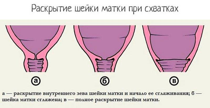Какой должна быть шейка матки при беременности?