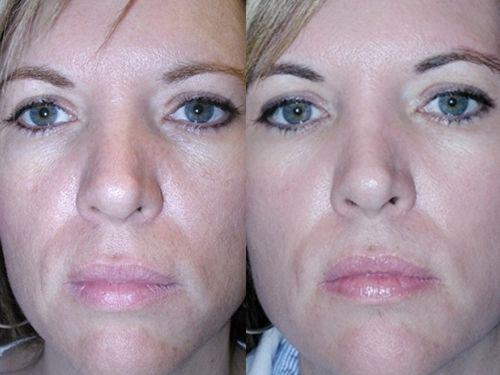 Карбоновый пилинг – эффективен, особенно, для жирной кожи (2018)
