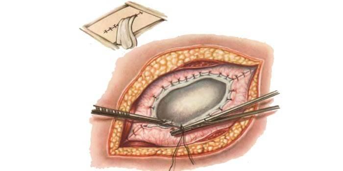 Лечение кисты бартолиновой железы: операция, после которой можно забыть о проблеме
