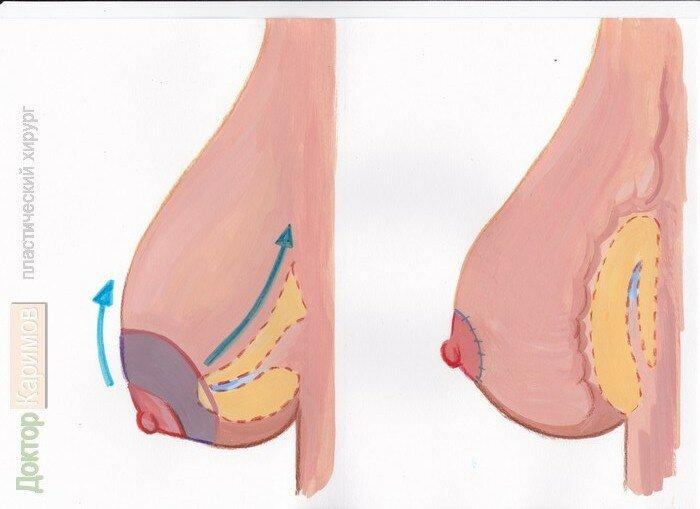 Подтяжка грудных желез без операции