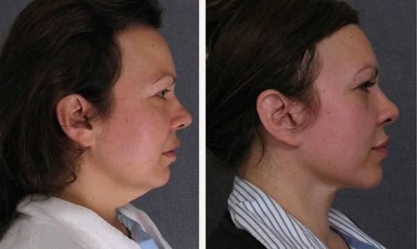 Платизмопластика: что это такое и как выполняется процедура. фото до и после