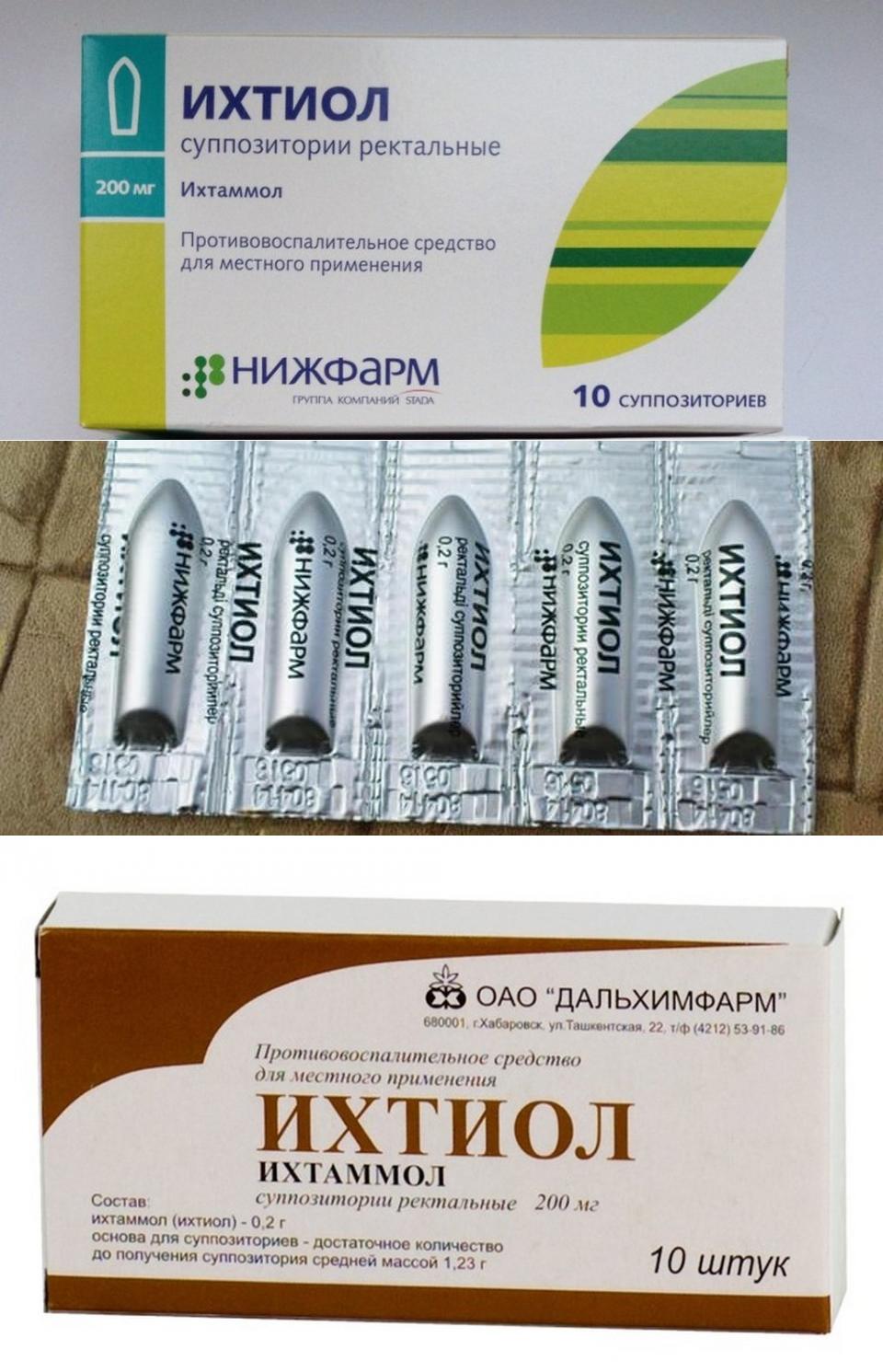 Ихтиоловые свечи: использование препарата в гинекологии и урологии