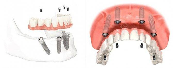 Особенности протезирования зубов при пародонтозе