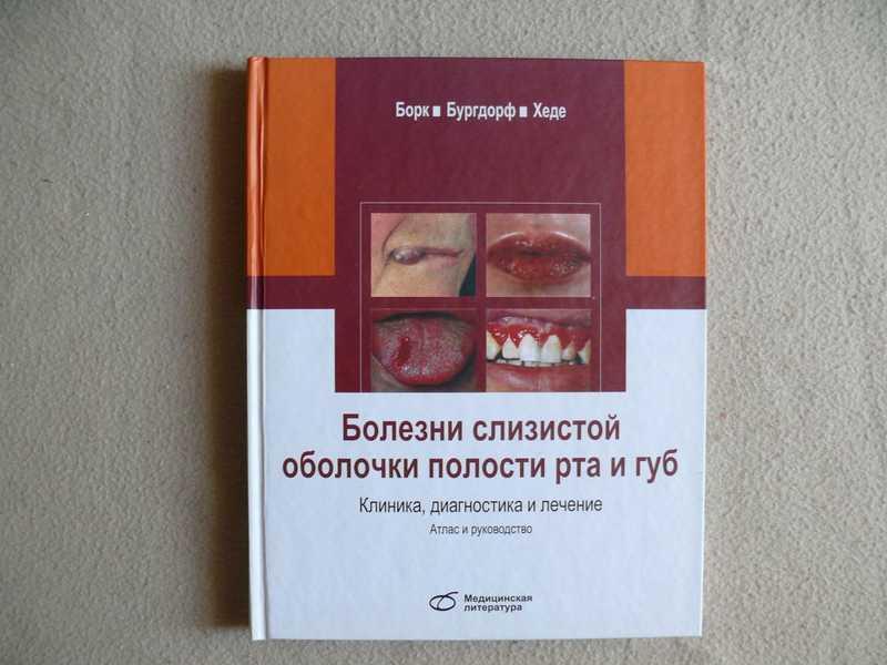 Заболевания языка и полости рта: фото и названия болезней слизистой оболочки у взрослых, способы лечения