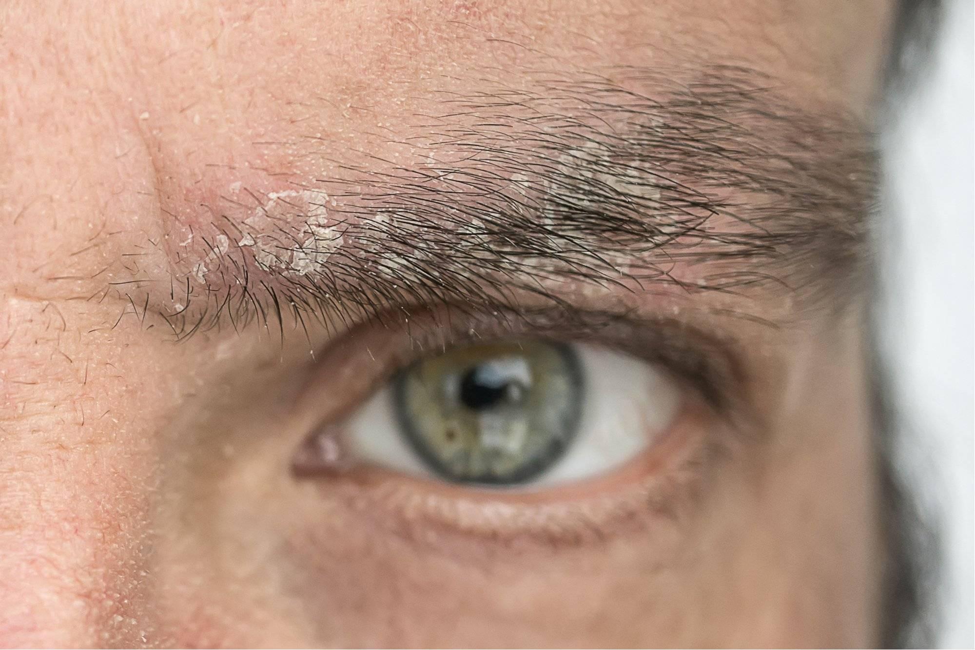Причины, вызывающие шелушение кожи на бровях и лбу