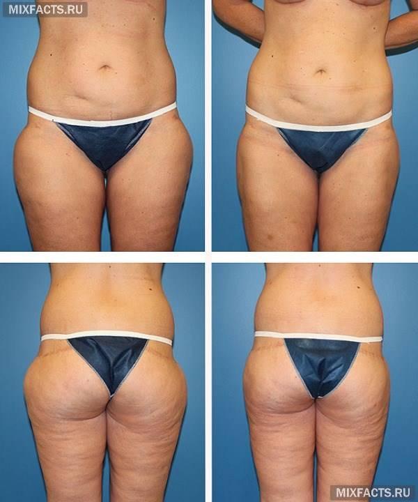 Ультразвуковая кавитация (липосакция) в косметологии — что это за процедура (отзывы и фото до и после)