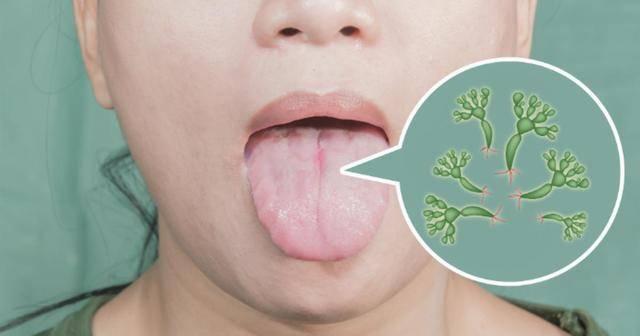 Грибок во рту – причины появления, симптомы и профилактика