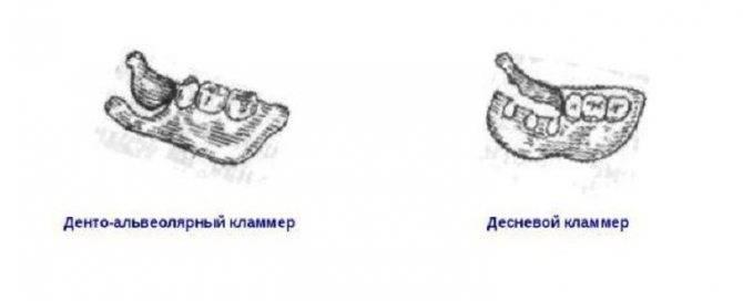 Виды кламмеров в ортопедической стоматологии