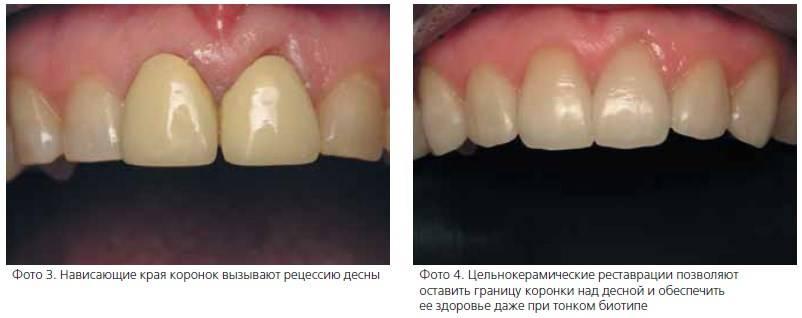 Воспалилась десна: зубной протез натирает и вызывает боль — что делать и чем лечить?