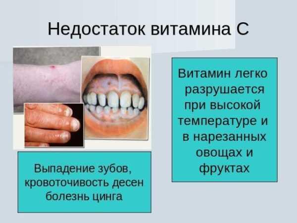 Что означает привкус горечи во рту? его симптомы и причины возникновения