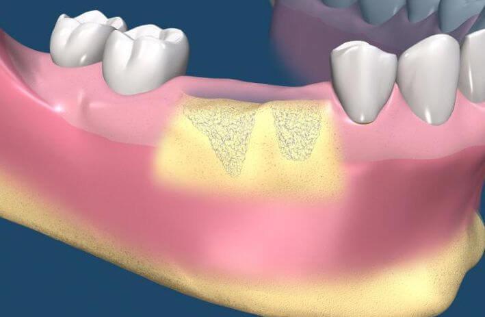 Остеомиелит после удаления зуба: как диагностировать и вылечить?